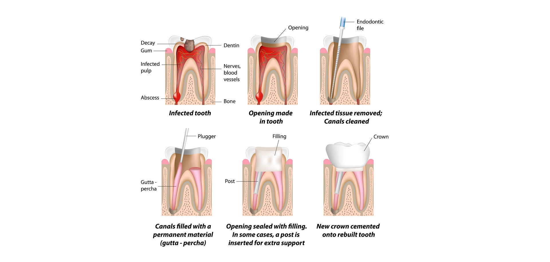 Root Canal Referrals at Town Moor Dental Practice